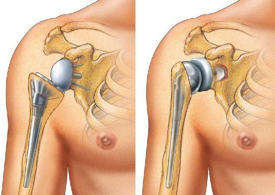 Протезирование плечевого сустава