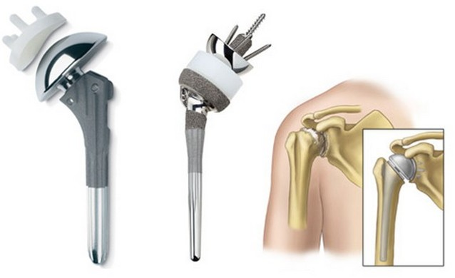 Эндопротез плечевого сустава