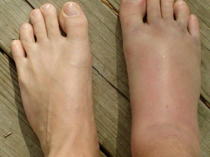 Симптом перелома голени