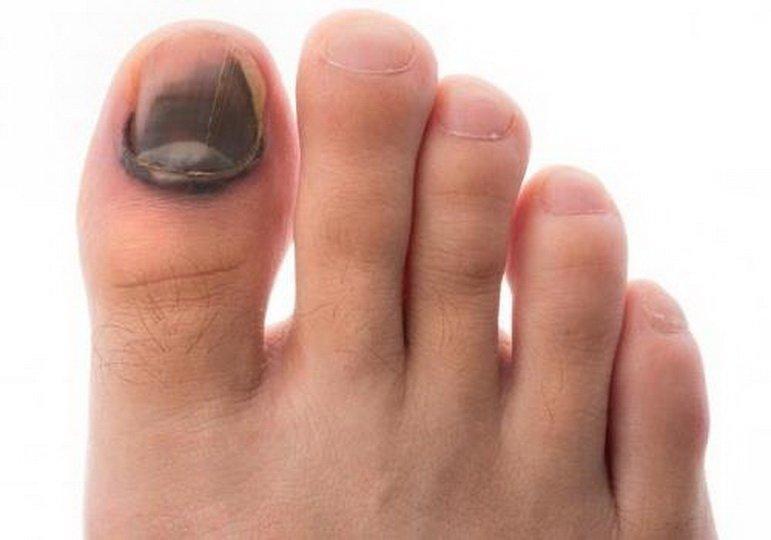 Чем лечить ушиб пальца на ноге?