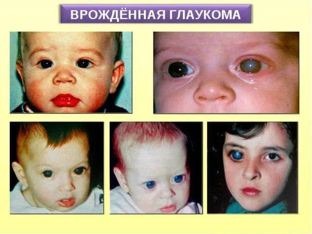 признаки врожденной глаукомы