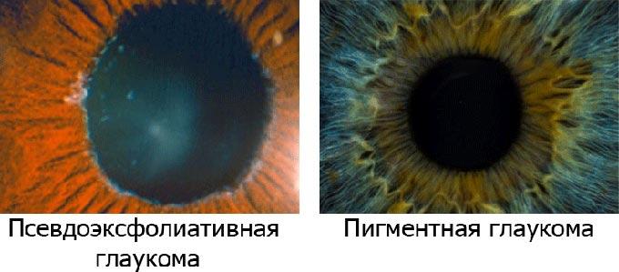 пигментная глаукома