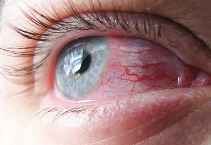 симптомы вирусного конъюктивита