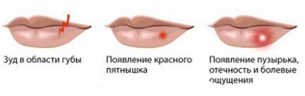 simptomu-gerpesa