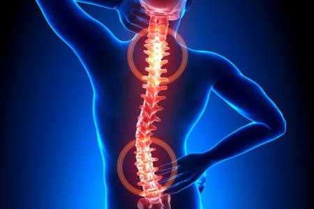 Тест 2. Оценка предрасположенности к остеохондрозу позвоночника