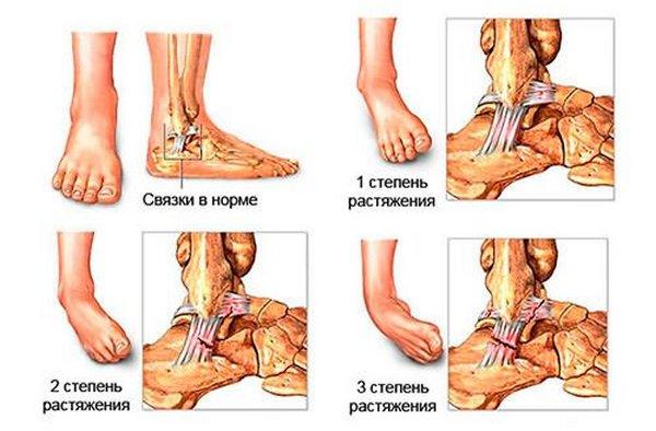 Растяжение голеностопного сустава