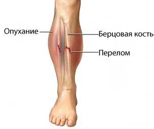 Сколько ходить в гипсе при переломе берцовой кости?