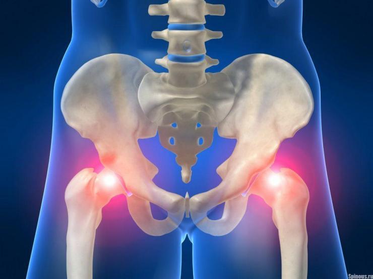 Симптомы бурсита тазобедренного сустава и способы его лечения