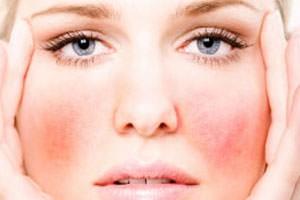 allergiya-na-lice2