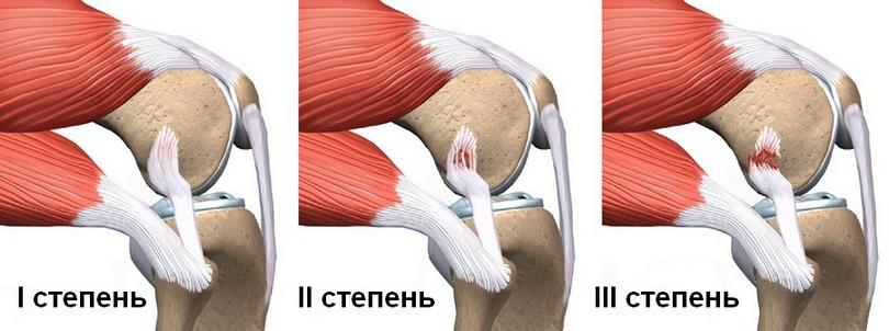 Три степени растяжения связок колена