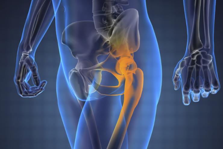 Остеогенная саркома крыла подвздошной кости