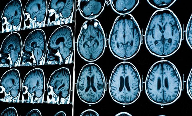 Расшифровка результатов магнитно-резонансной томографии