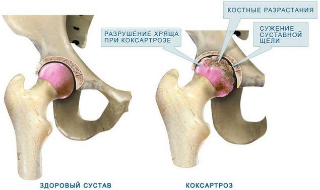 Здоровый сустав и сустав пораженный коксартрозом