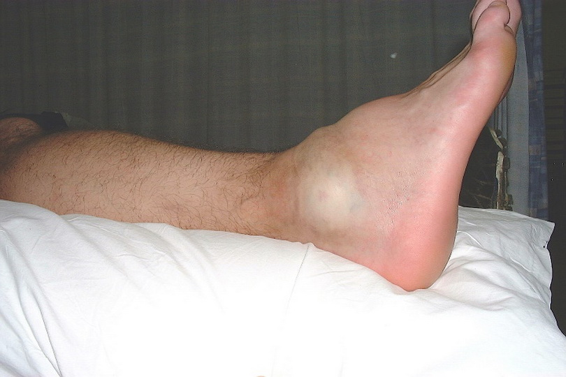 Как лечить травмы, вызванные подворачиванием ноги?