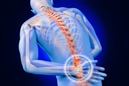 Тест 8. Обусловлены ли Ваши боли в спине болезнью Бехтерева?
