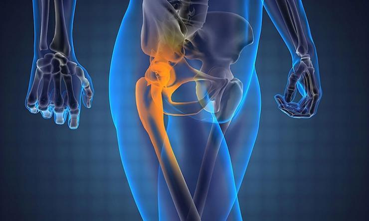 Болезни, провоцирующие боль в тазобедренном суставе