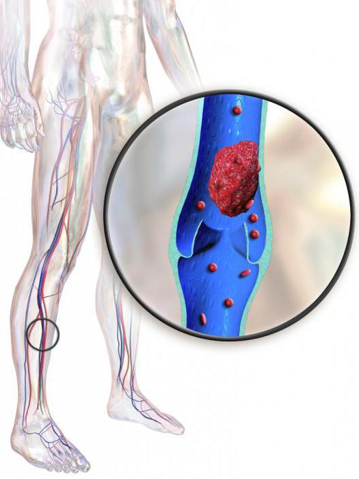 Как предотвратить тромбоз: основные правила