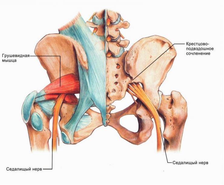 Действия при защемлении седалищного нерва у беременной женщины