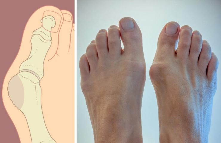 Причины появления и места локализации косточек на ногах