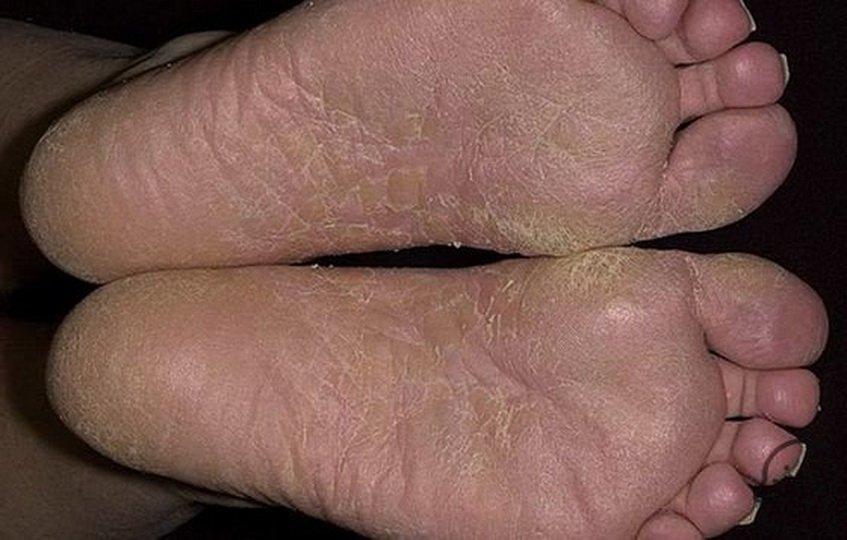 Лечение дисгидротической формы грибка стопы