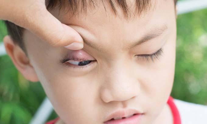 сколько зреет ячмень на глазу