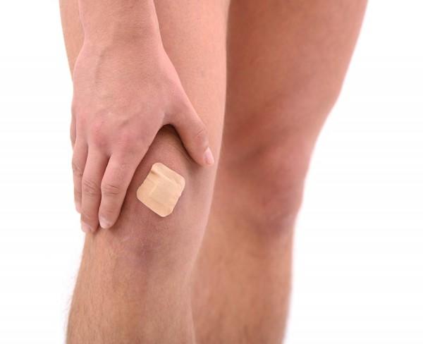Как за 1 день вылечить синяк на ноге?