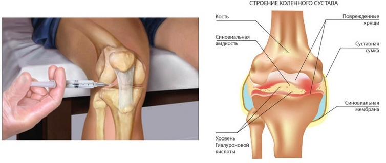 Введение гиалуроновой кислоты в коленный сустав