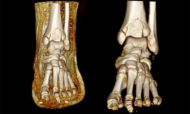 Компьютерная томография голеностопного сустава