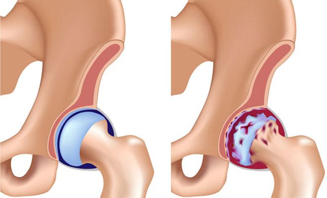 Что показывает УЗИ тазобедренного сустава у взрослых