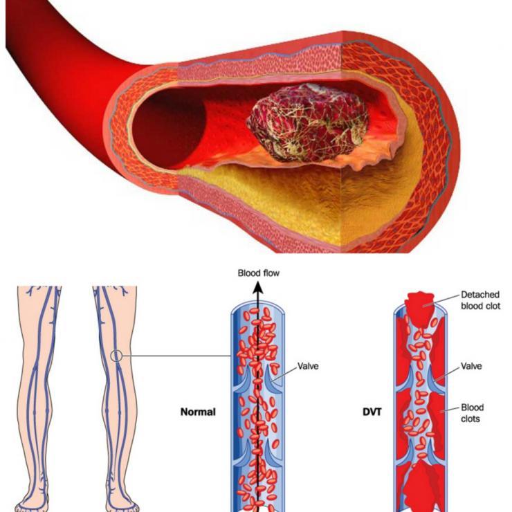 Симптомы и лечение тромбоза вен верхних конечностей