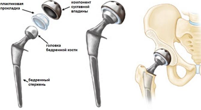 Эндопротез сустава