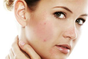 prichini-allergii273