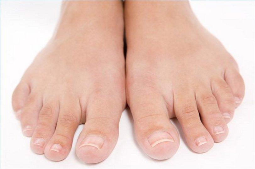 Применение медного купороса при грибке ногтей на ногах