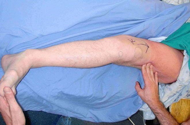 Признаки и лечение перелома ноги у ребенка