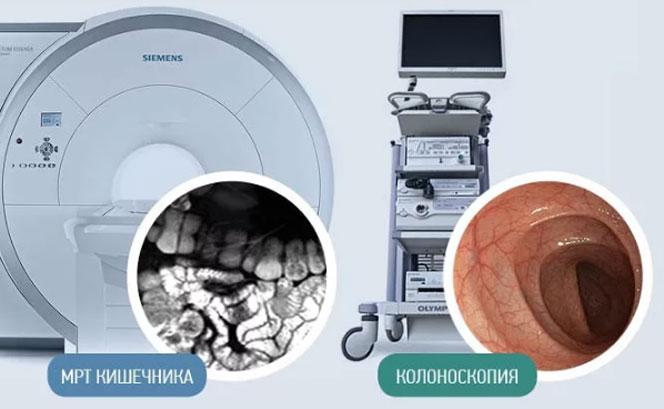 Что лучше колоноскопия или МРТ кишечника,