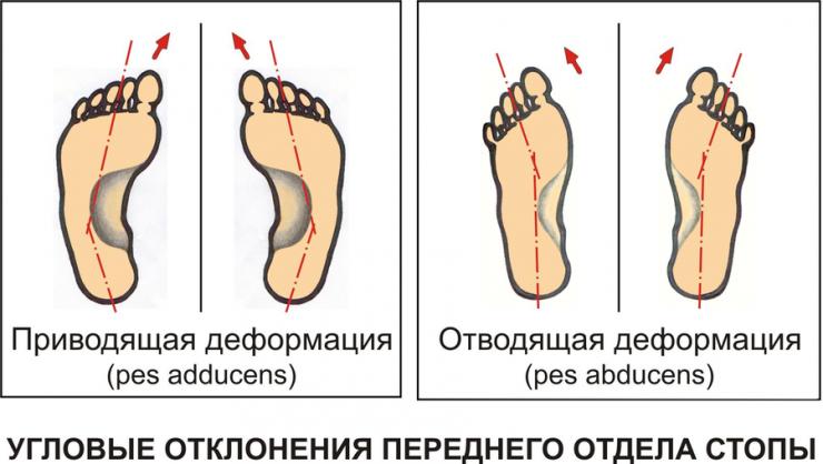 Симптомы и лечение приведенной стопы у ребенка