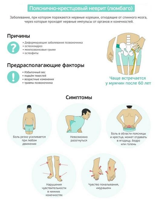Причины и симптомы люмбаго