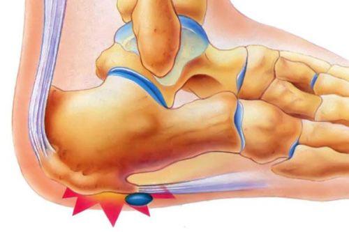 Симптомы и лечение костного экзостоза