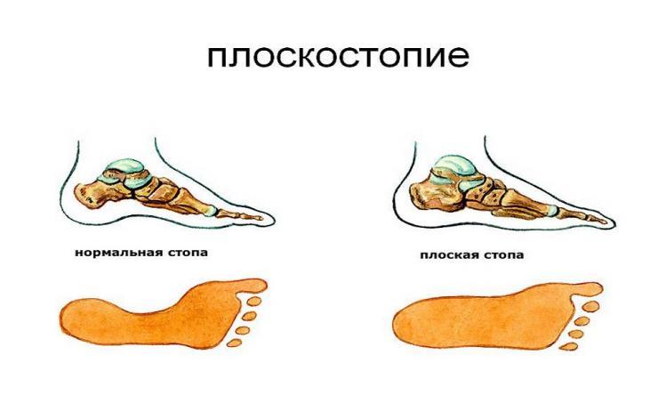 Особенности проведения операции по исправлению плоскостопия