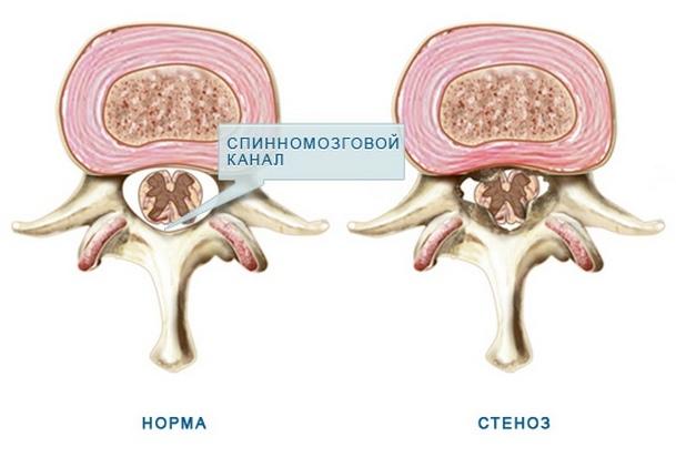 Стеноз спинномозгового канала