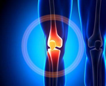Тест 9. Оценка предрасположенности к развитию артроза коленного сустава