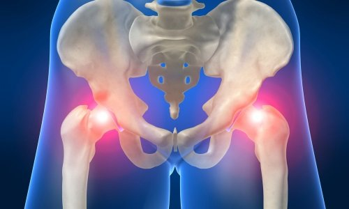 Причины инфаркта костного мозга бедренной кости