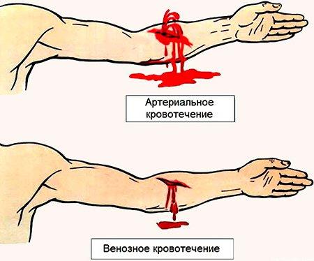 Основные симтомы венозного кровотечения