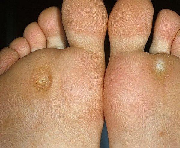 Характеристики носков и стелек от натоптышей на ступнях