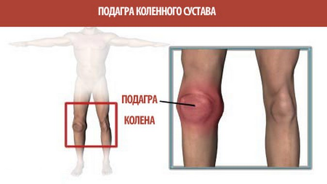 Подагра коленного сустава