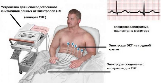 Устройство для считывания данных при электрокардиограмме