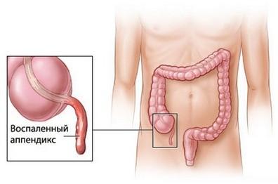 appendicit