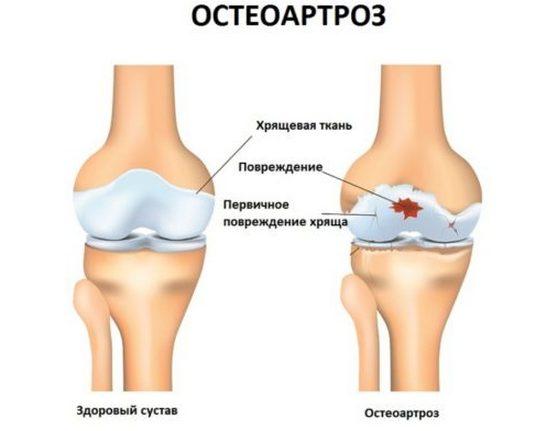 Заболевание остеоартроз