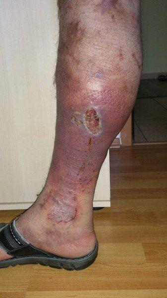 Что делать, если рана на ноге не заживает?