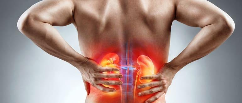 Возможные причины болей в почках у мужчин и характерные симптомы